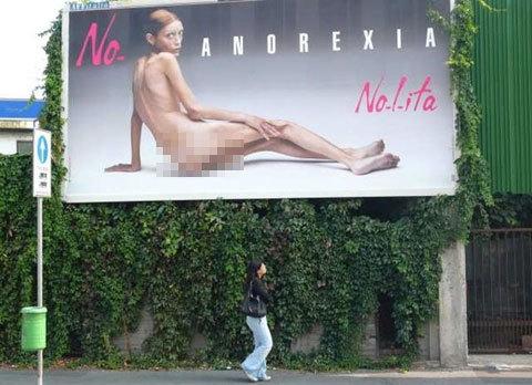 Isabelle Caro trong bức ảnh cổ động của chiến dịch chống chán ăn ở Italy hồi năm 2007. Ảnh: AP.