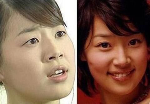 Thật ra lúc mắt một mí thì Han Ji Hye cũng đã rất xinh đẹp.