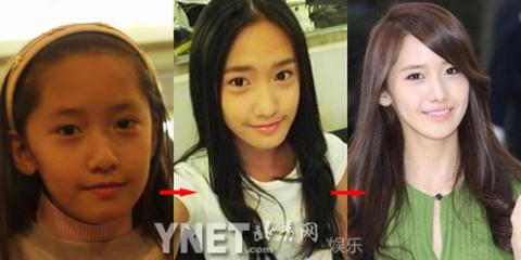 Im Yoon Ah, từ nhỏ đã rất xinh đẹp.