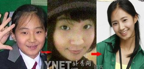 Kwon Yu Ri gần như thay đổi hoàn toàn so với thời thơ bé.