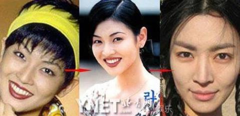"""Kim So Yeon thời đeo băng đô khiến người khác """"thất kinh""""."""