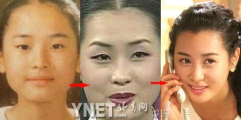 Lee Da Hae, sự thay đổi đến ngỡ ngàng và đã xinh đẹp hơn rất nhiều.