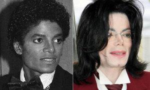 Gương mặt biến đổi theo thời gian của Michael Jackson
